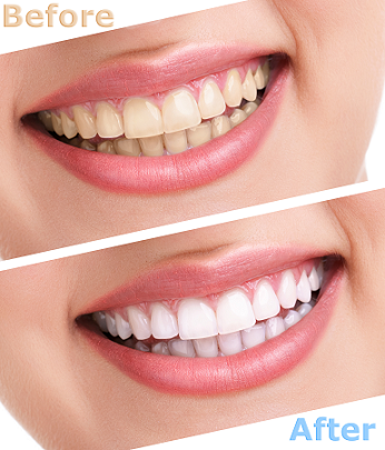 5 Tips for Whiter Teeth