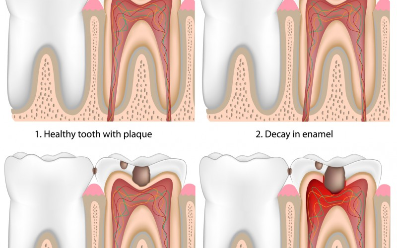 Common Dental Conditions to Discuss with Your Dentist