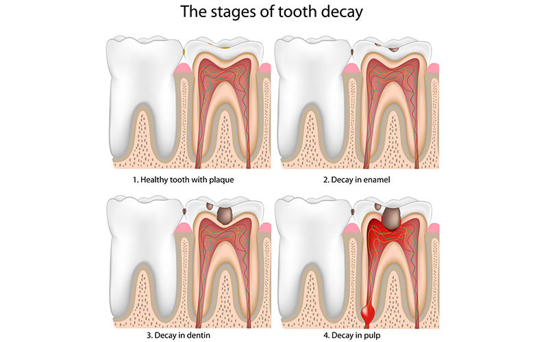 Tooth Decay : Why It Happens and How to Prevent It