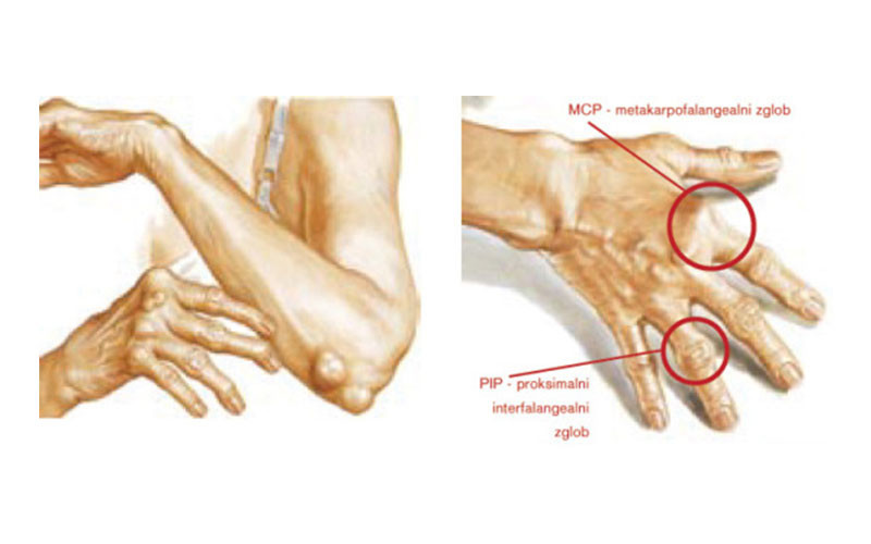Arthritis: What It Is and How to Manage It