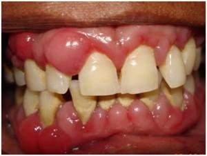 How-to-Treat-Gum-Disease