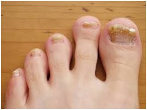 How-to-Treat-a-Fungal-Toenail-Infection