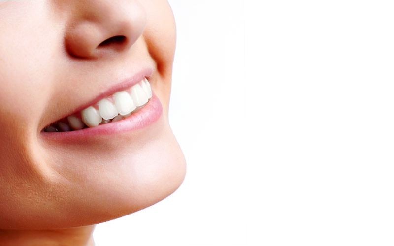 Best Teeth Whitening Method for You?