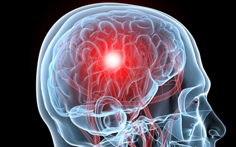 What are the warning signs of a stroke?