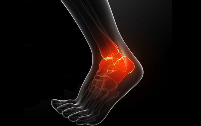 What is a Jones Fracture?