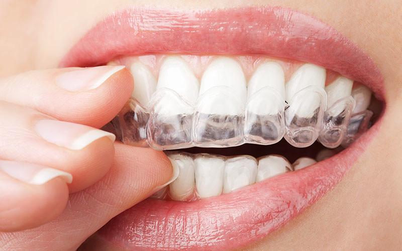 Considering Invisalign? Check out these pointers first!