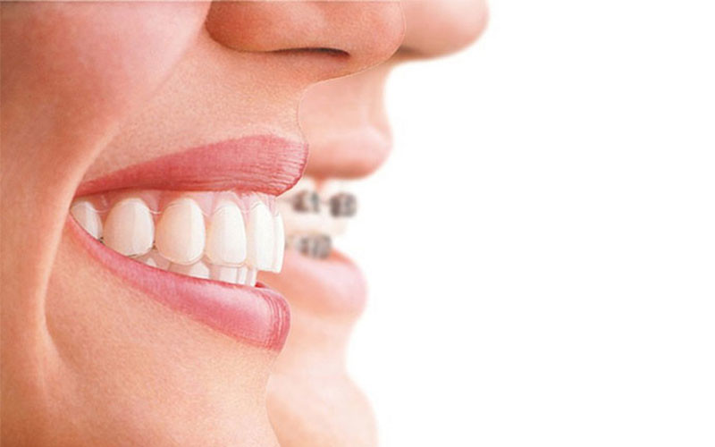 Invisalign vs Brackets, What type of braces is right for you?