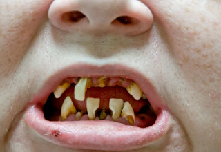 Oral Cancer: Why Oral Health Can Save Your Life