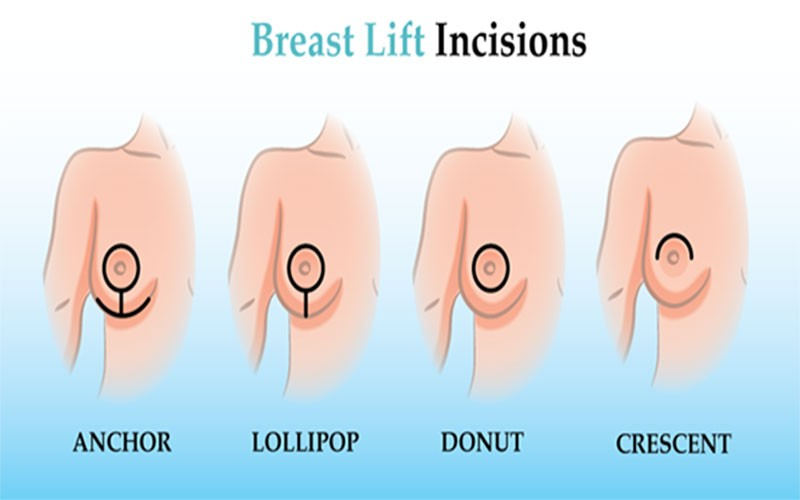 The Breast Lift Procedure