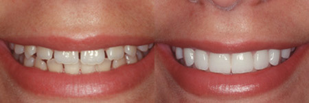 Whitening, Bonding, and Veneers: A Quick Guide to Common Cosmetic Dental Procedures