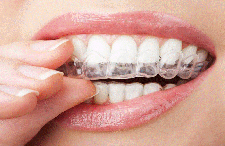 Dental Bleaching Methods; Which One Is For You?