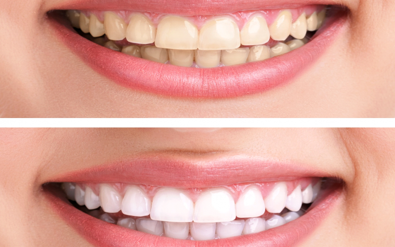 Abnormal Tooth Color: What Causes It and How You Can Fix It