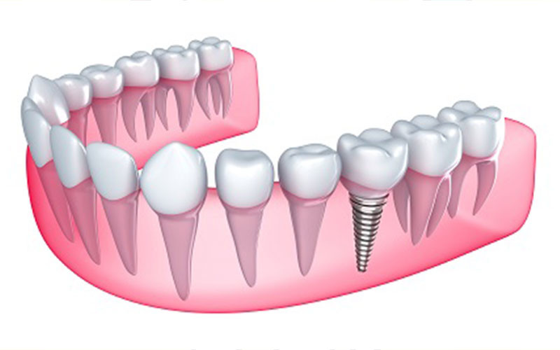 How Dental Implants Perfect Smiles
