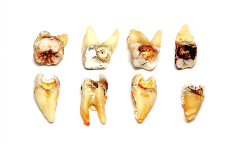How Tooth Decay is Caused and How to Get It Fixed