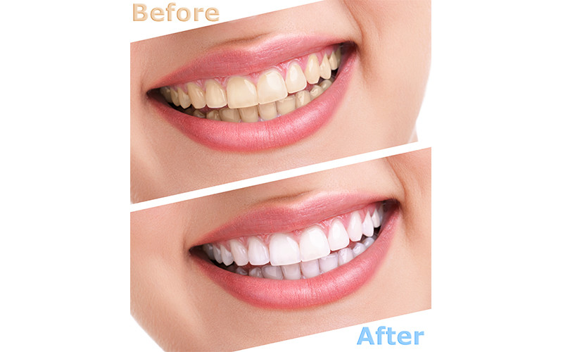How a Dentist Can Fix Your Smile