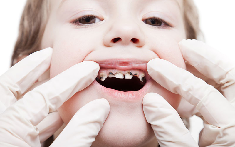 Tooth Decay in Children – A Common Dental Problem