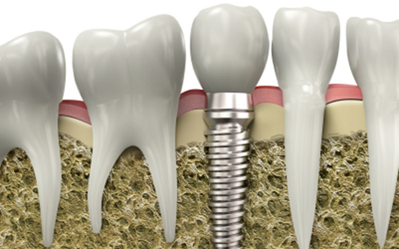 What to Expect When Getting a Dental Implant