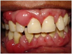 How-to-Treat-Gum-Disease