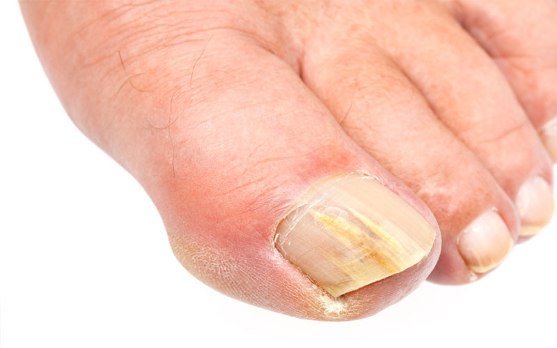 Have an Infected Toenail? Here's How to Treat it