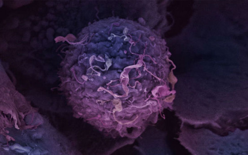 Seven Ways to Prevent Cancer