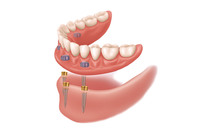 Tooth Replacement Options: Comparing Dentures to Dental Implants