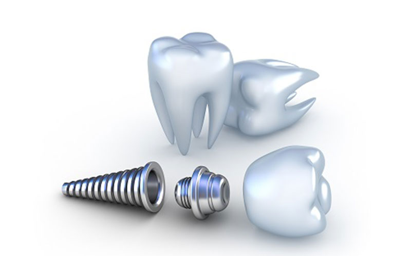Dental implant procedure – an alternative to dentures