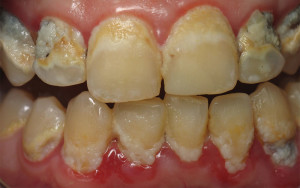 What are the signs of gum diseases to look for
