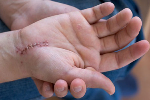 How to care for wounds and minimize scars