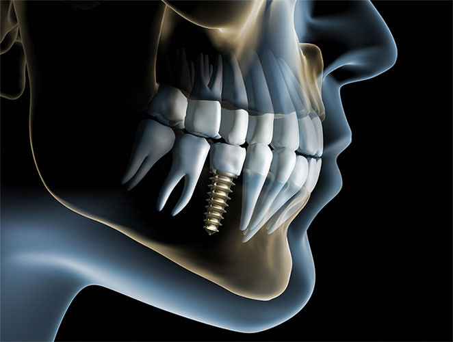 Are You Sick And Tired Of Dentures? Try Dental Implants For Missing Teeth